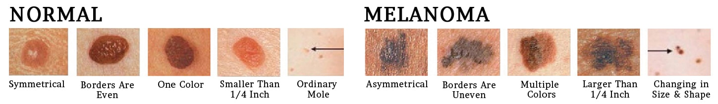 skin cancer examples